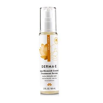 Anti-Acne Acne Blemish Control Treatment Serum (60ml/2oz)