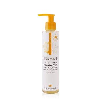 Anti-Acne Acne Deep Pore Cleansing Wash (175ml/6oz)