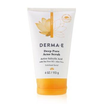 Anti-Acne Deep Pore Acne Scrub (113g/4oz)